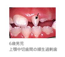 6歳男児、上顎中切歯間の順生過剰歯