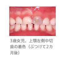 歯茎 血 赤ちゃん