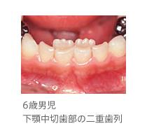 生え代わり(混合歯列) こどもの歯科 歯とお口の健康ガイド 歯とお ...